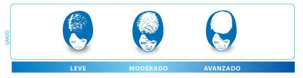 medical hair alopecia femenina
