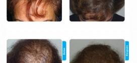 Medical Hair: opiniones del centro de medicina capilar