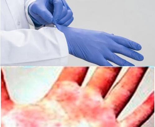 Qué guantes son los más indicados para alérgicos al látex